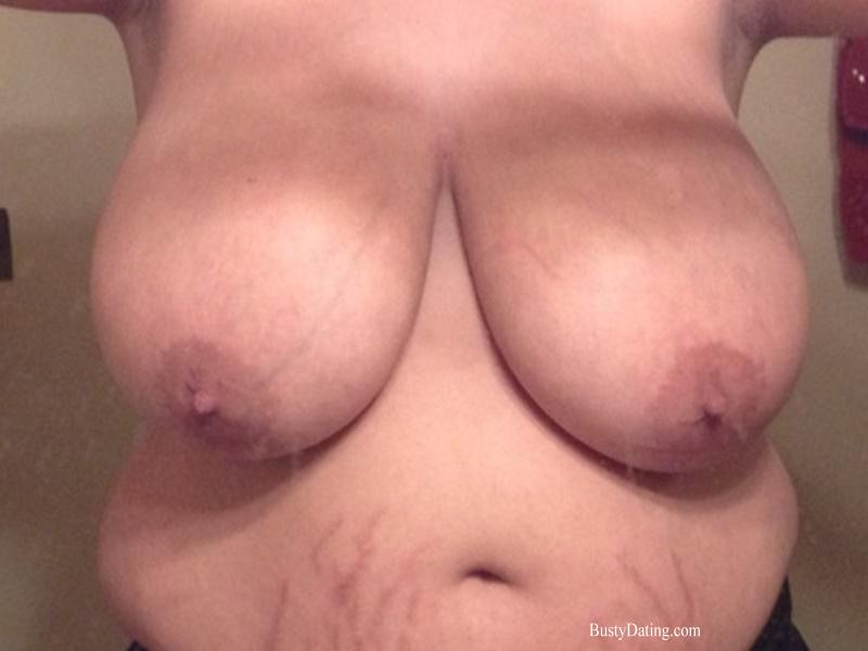 Busty Breast Reductions - Set 28 - N